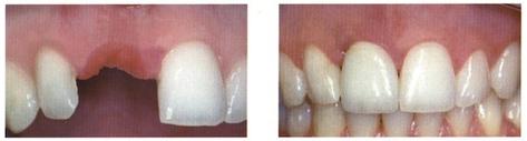 Sostituzione singolo dente